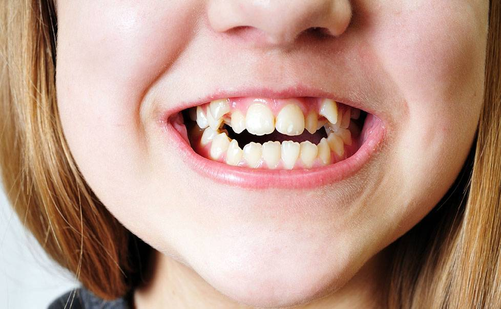 Кривые зубы у детей: почему, как исправить коренные и постоянные зубы