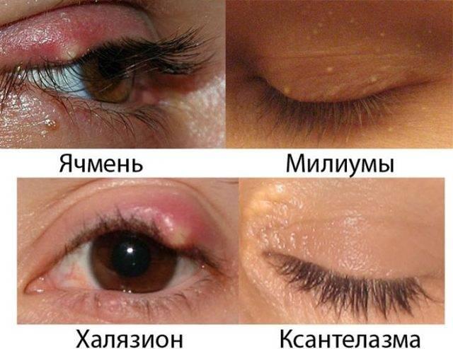 ячмень на глазу во время беременности