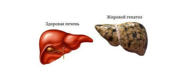 гепатоз симптомы