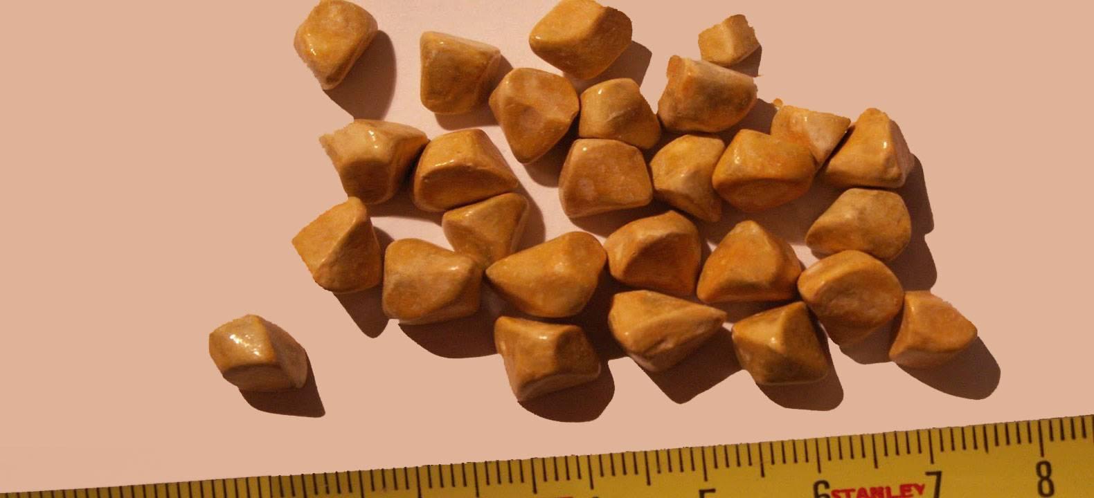 Билирубиновые камни в печени