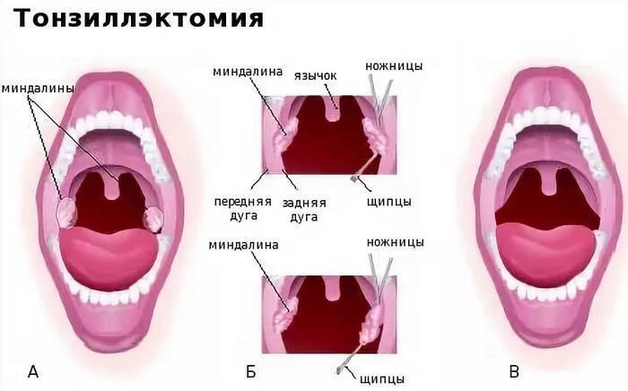 Удаление миндалин при хроническом тонзиллите: операция и реабилитация после