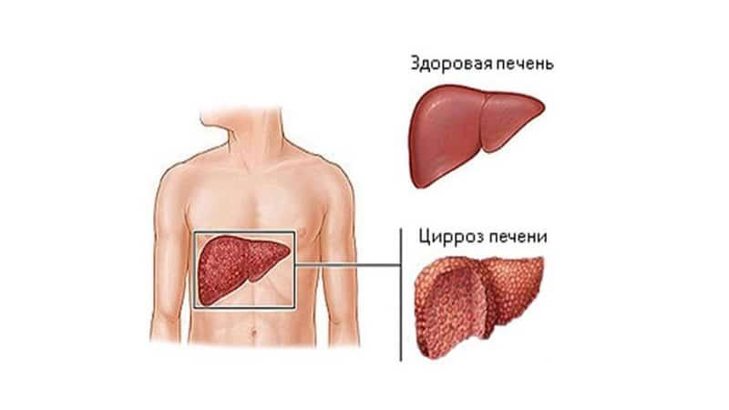 Асцит при циррозе печени: симптомы и лечение