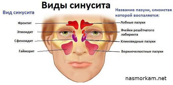 Этмоидит. причины, симптомы — симптомы