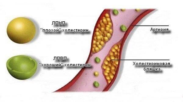 уровень плохого холестерина крови