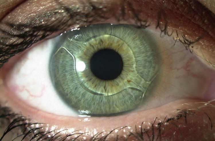 Разновидности и срок службы искусственных хрусталиков глаза