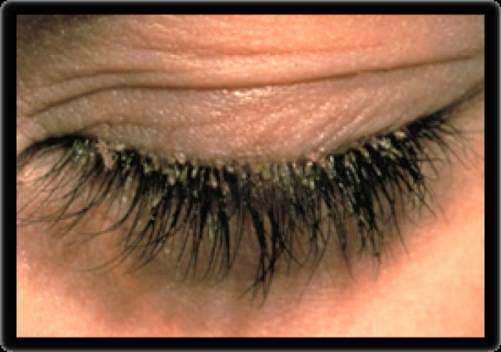 блефарит глаза симптомы