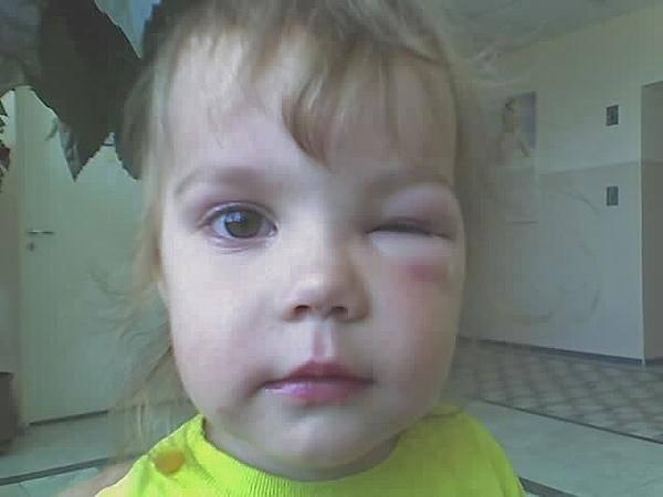 Укус комара!лицо отекло-глазика не видно вообще!!
