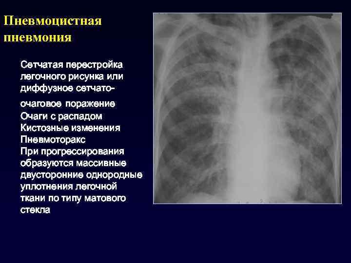 Пневмоцистная пневмония [пневмоцистоз]