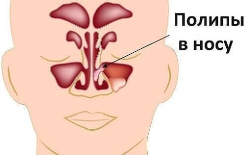 Заложенность одной ноздри. что делать, если заложена одна ноздря