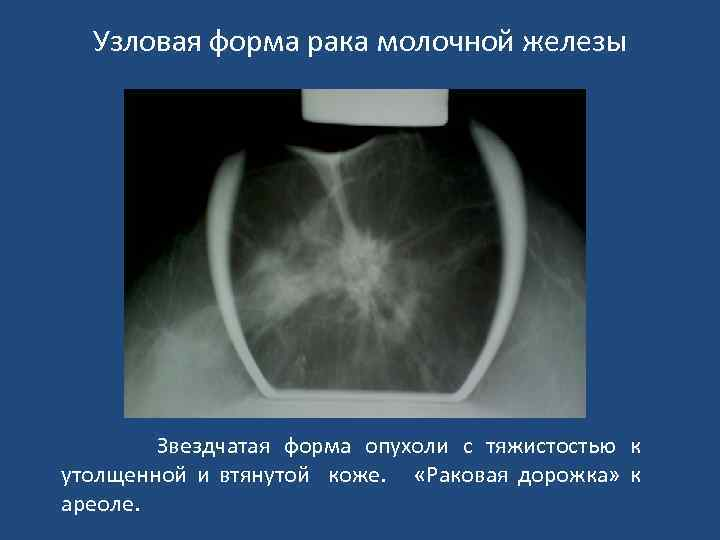 Лечение узловые образования молочной железы