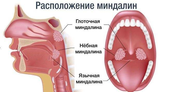 Увеличение миндалины с одной стороны
