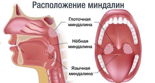 гланды удалены а горло болит