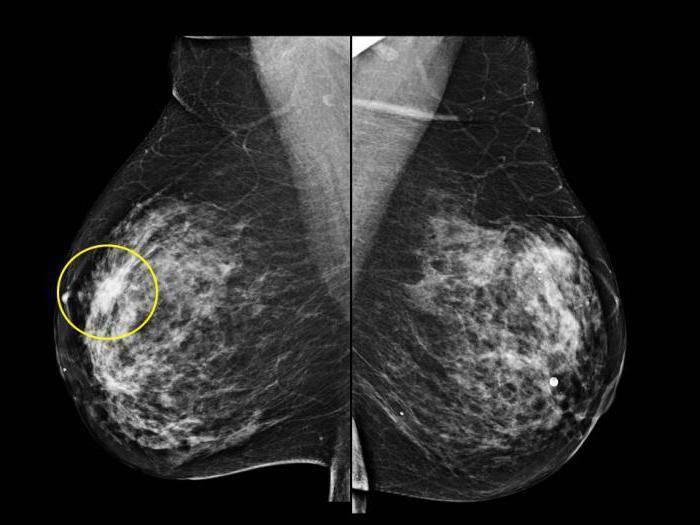 мастопатия или рак как отличить