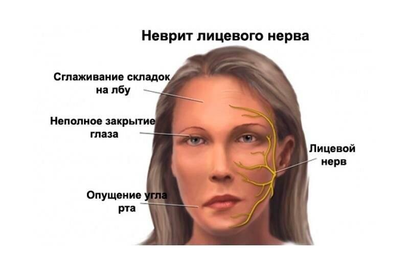 невриты лицевого нерва