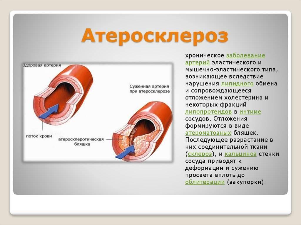 атеросклероз второй степени