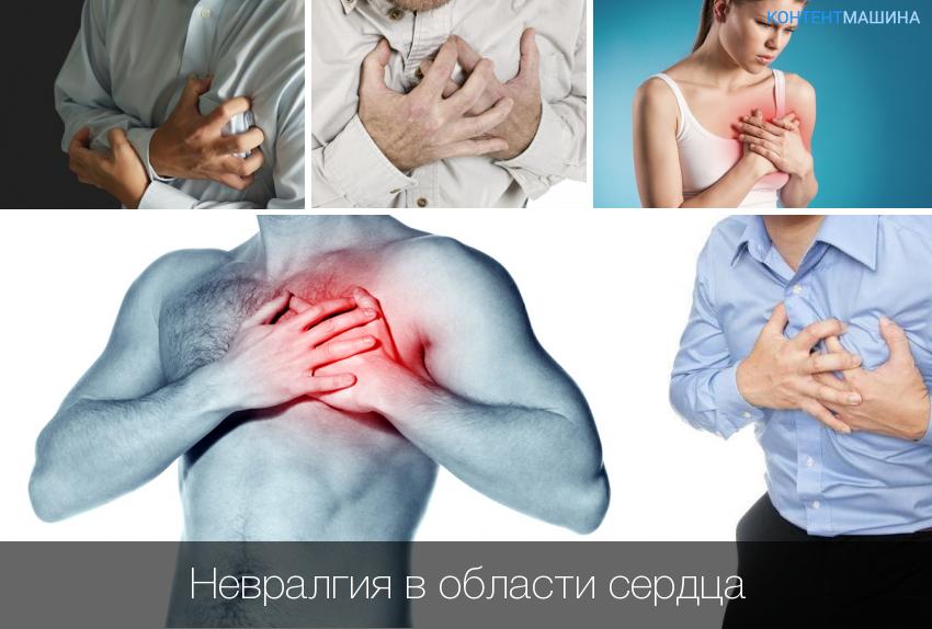 левосторонняя межреберная невралгия симптомы и лечение