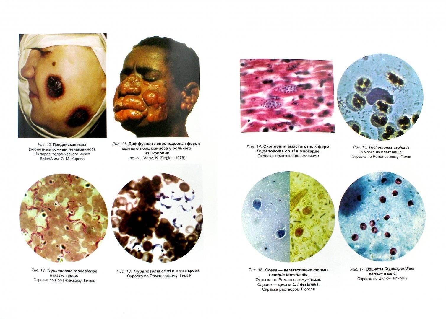 Паразиты человека: симптомы и виды заболеваний