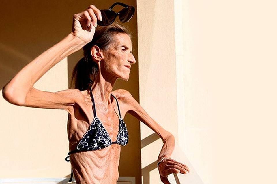 как похудеть до анорексии