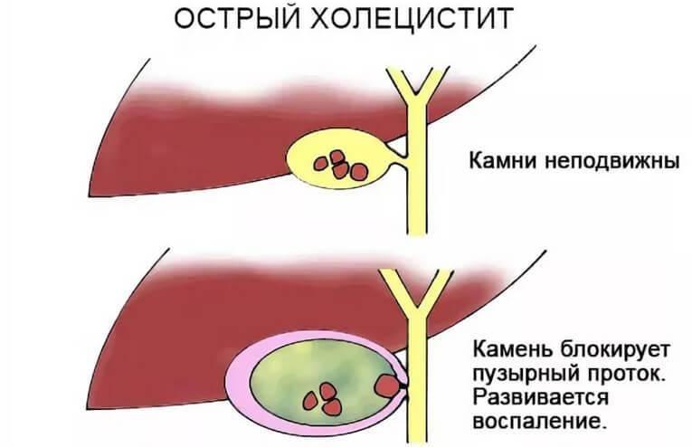 острый холецистит симптомы