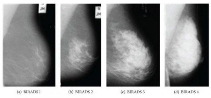 расшифровка маммографии