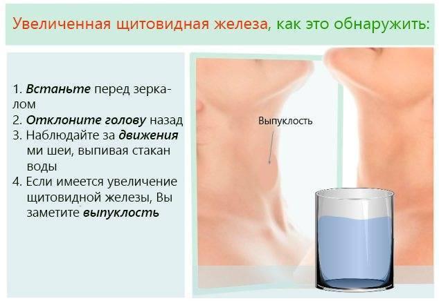 гиперплазия щитовидной железы 2 степени