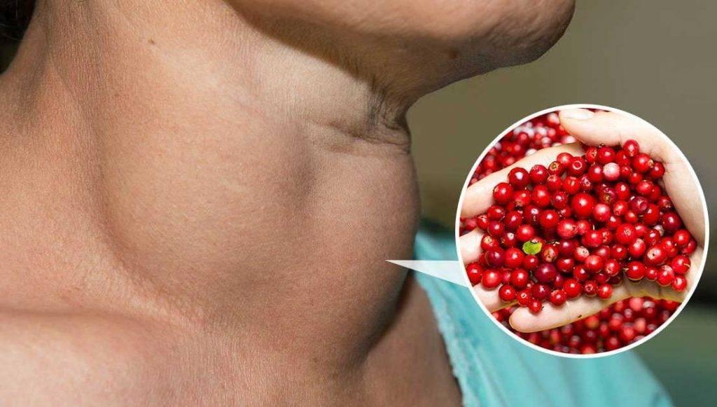 Лечение народными средствами щитовидных узлов