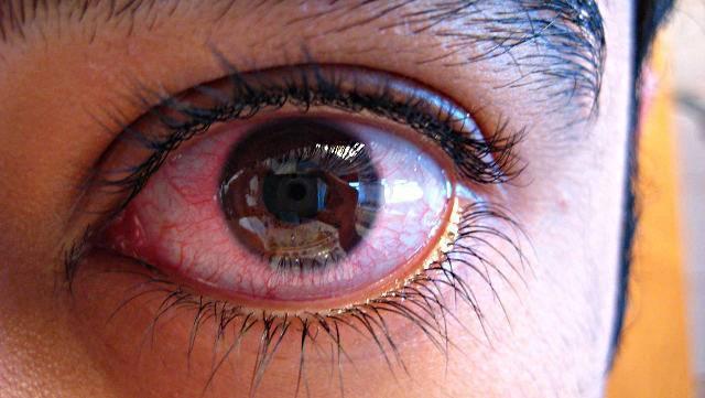 эписклерит глаза у детей