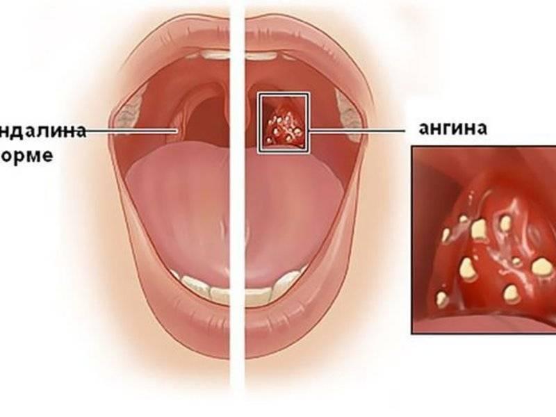 Лечение хронического тонзиллита