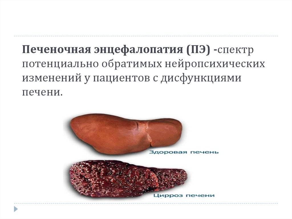 Чем опасна печеночная энцефалопатия, методы лечения и профилактика