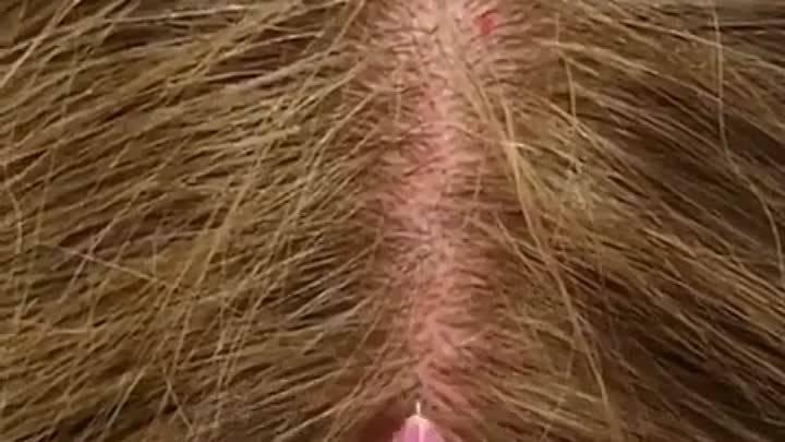 демодекоз на волосистой части головы