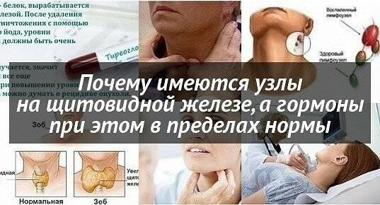Узел щитовидной железы с кальцинатами при нормальных гормонах: гормонах, железы, кальцинатами, меню, нормальных, питание, продукты, способы, узел, щитовидной