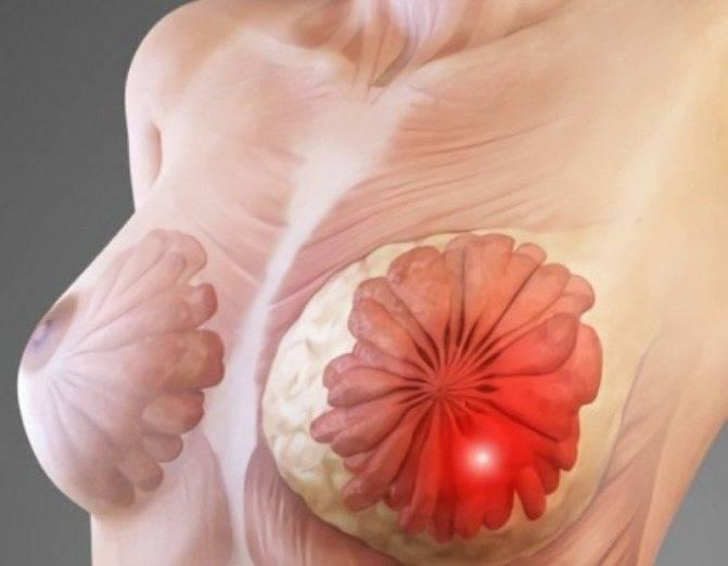 Как отличить рак груди от мастопатии