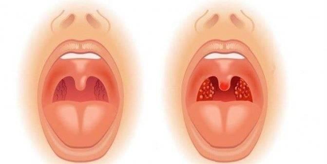 Рыхлые миндалины у ребёнка: чем лечить