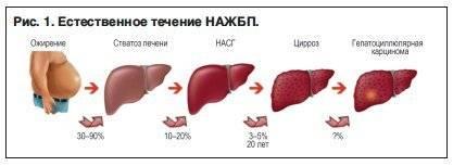 нажбп неалкогольная жировая болезнь печени