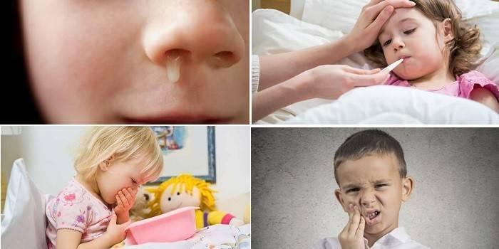 признаки гайморита у детей 3 лет