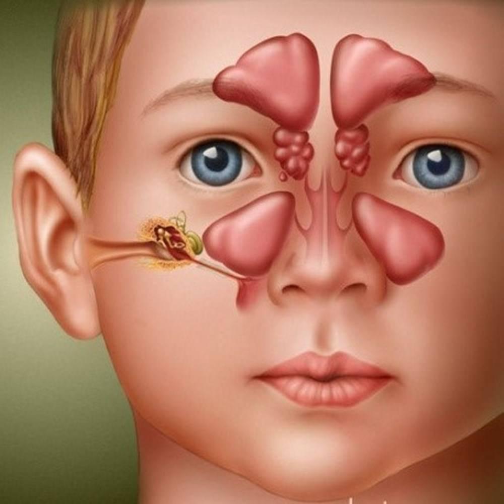 Риносинусит симптомы и лечение у взрослых