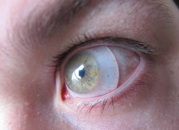 может ли линза закатиться за глаз