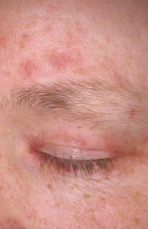периоральный дерматит причины