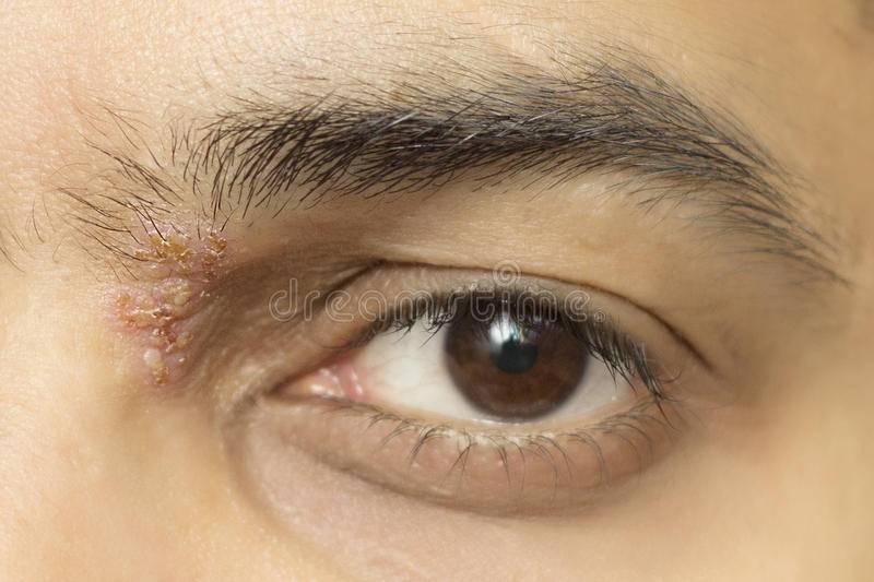 как лечить герпес на глазу