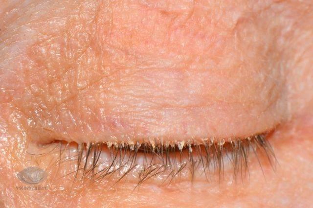 глазные капли от блефарита