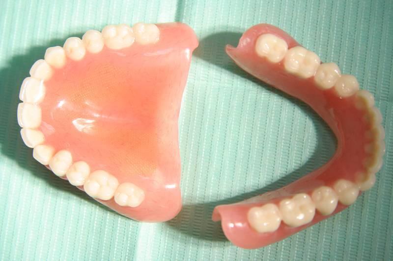 Гибкие зубные протезы — что это и как правильно выбрать?