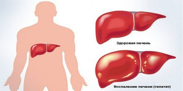Гепатит в (б), лечение, современные методы терапии