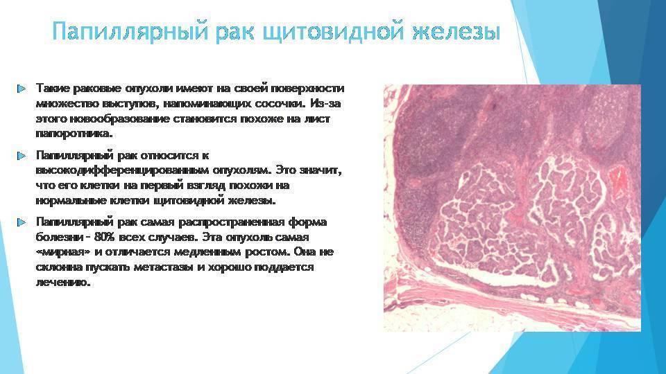 Папиллярная и фолликулярная форма рака щитовидной железы