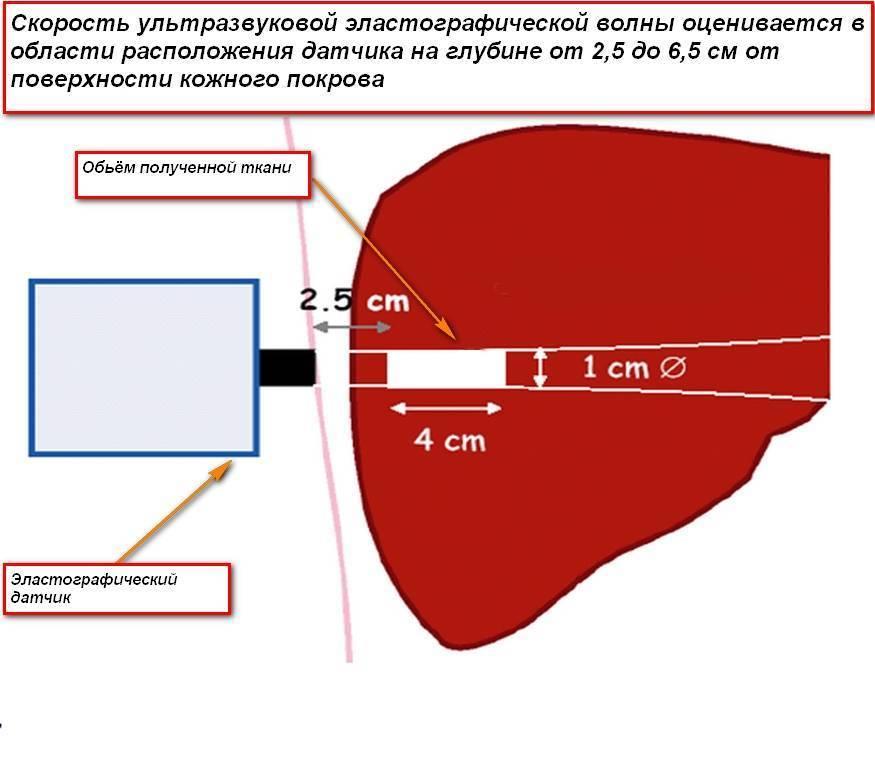 Эластометрия печени, что это такое, её нормальные показатели и подготовка к процедуре