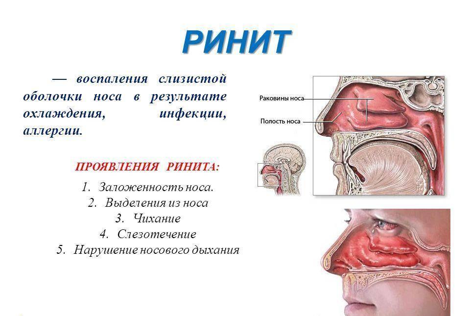 Заложен нос и болит голова