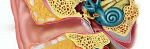 Как лечить вестибулярный неврит