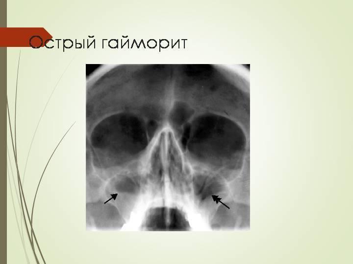 двусторонний гайморит симптомы