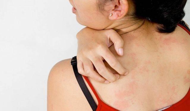 Лечение дерматита иглоукалыванием