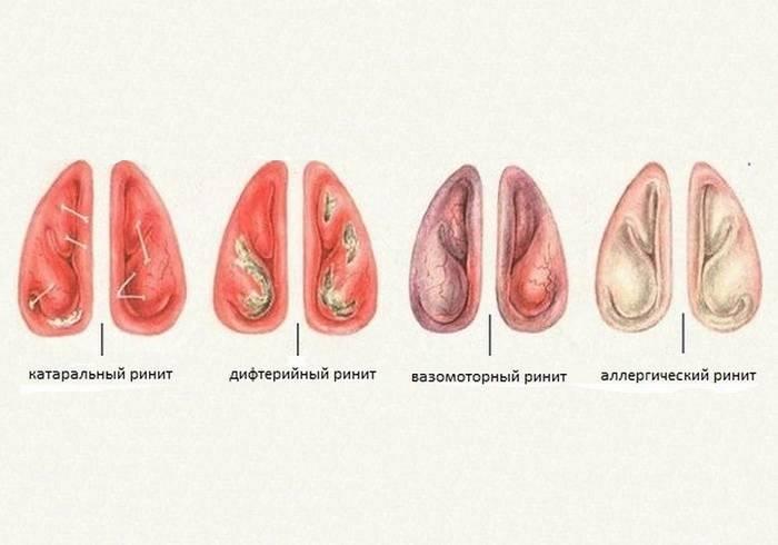 Вазомоторный ринит: симптомы и способы лечения