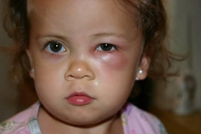 опухло веко над глазом у ребенка